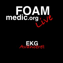 EKG avanceret i Århus, 2200 dkr inkl moms